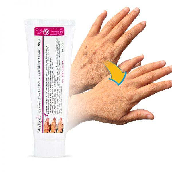 Wellys anti-vlekken crème voor gezicht en lichaam